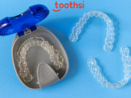 No Payment Required: Start Your Smile Makeover Treatment With Toothsi